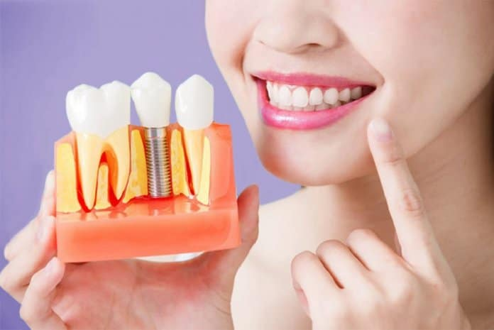 The Types of Dental Implants and Why You Should Get Them