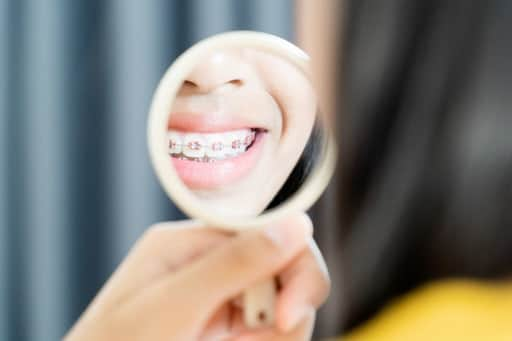 4 Types of Dental Braces for Kids