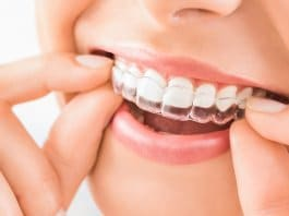 Why Invisalign is so popular