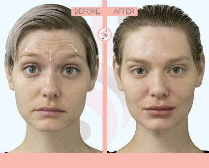 Treating Different Areas of the Face